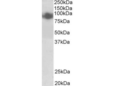Blimp-1 Polyclonal Antibody