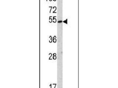 SUV420H2 Polyclonal Antibody