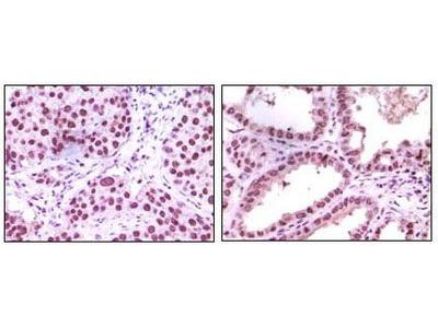 LSD1 Monoclonal Antibody (1B2E5)