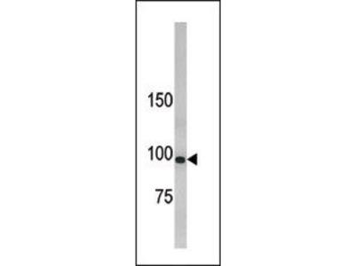 LLGL1 Polyclonal Antibody