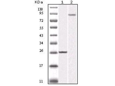 IKK beta Monoclonal Antibody (10A2)