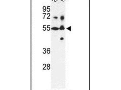 CYP21A2 Polyclonal Antibody