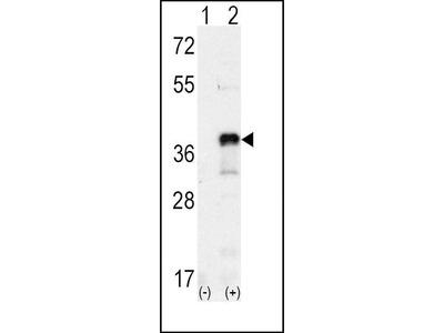 SNAIL Polyclonal Antibody