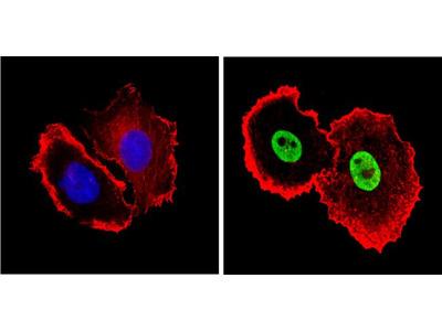 Ku80 Monoclonal Antibody (111)