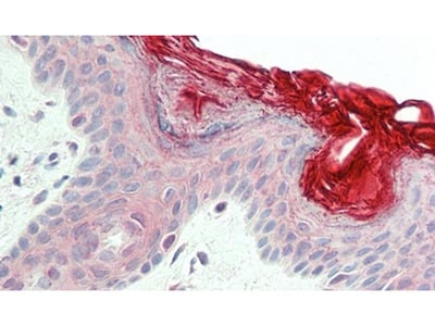 PERP Polyclonal Antibody