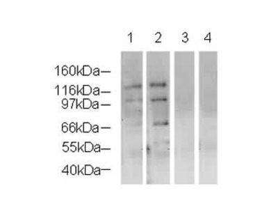 NSD3 Polyclonal Antibody