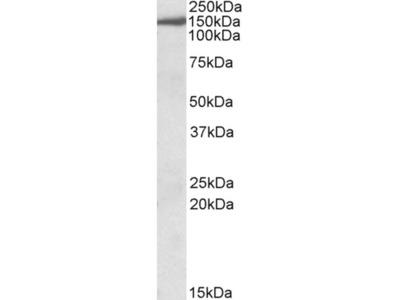 EPB41L3 Polyclonal Antibody