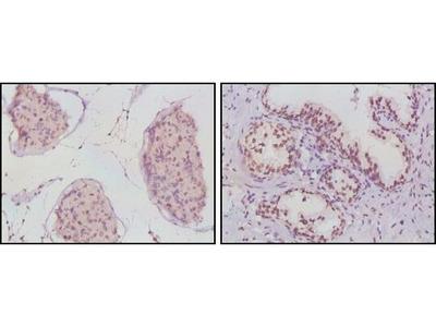 Androgen Receptor Monoclonal Antibody (2H8)