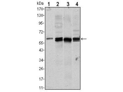 AKT1 Monoclonal Antibody (3A3)