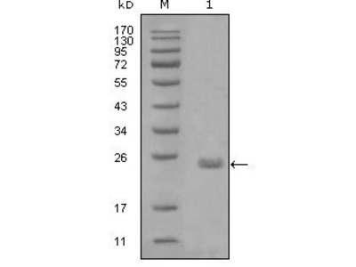 Axl Monoclonal Antibody (1B3A2)