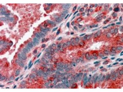 ACTR1B Polyclonal Antibody