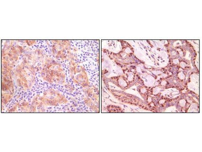 gamma Synuclein Monoclonal Antibody (1H10D2)