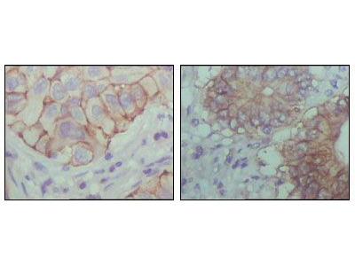 EphB1 Monoclonal Antibody (5F10A4)