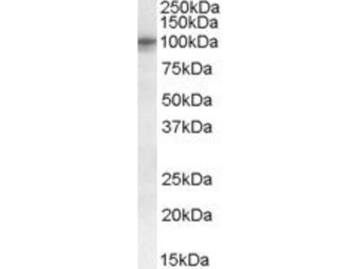 TAS1R2 Polyclonal Antibody
