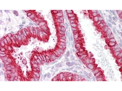 CHRNB2 Antibody