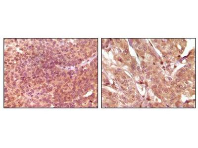 SRA1 Monoclonal Antibody (7H1G1)