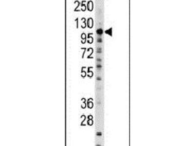 SALL4 Polyclonal Antibody