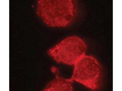 IRAK-M Polyclonal Antibody