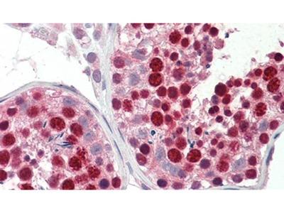 ABCA9 Polyclonal Antibody