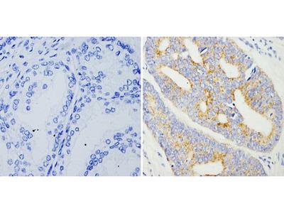 AMACR Monoclonal Antibody (13H4)