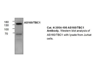 AS160/TBC1 Antibody