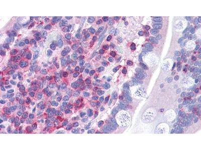 FNBP1 Polyclonal Antibody