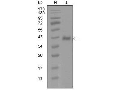 Androgen Receptor Monoclonal Antibody (1A9D12)