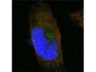 SORL1 Monoclonal Antibody (3B6B11)