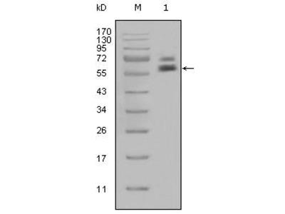 Cytokeratin 5 Monoclonal Antibody (1E1)