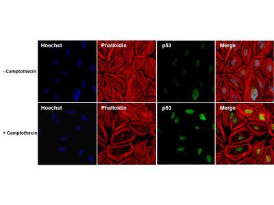 p53 Monoclonal Antibody (DO-7)