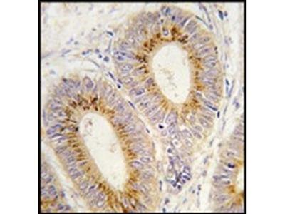 Methionyl tRNA synthetase antibody