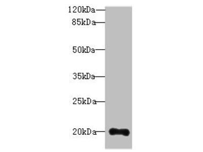 TTC9C antibody