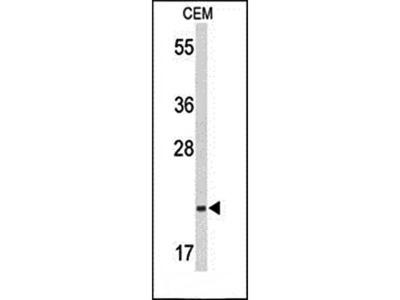 TIFA antibody