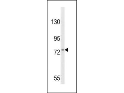 CSF3R antibody