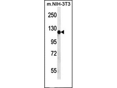 PIGN antibody