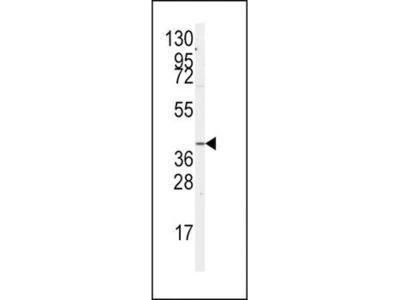 GNA12 antibody