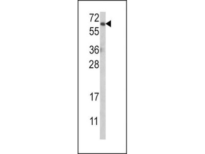 AKT antibody