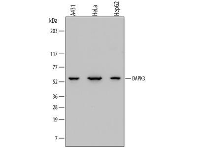 DAPK3 / ZIPK Antibody