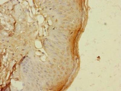 TIGD4 antibody