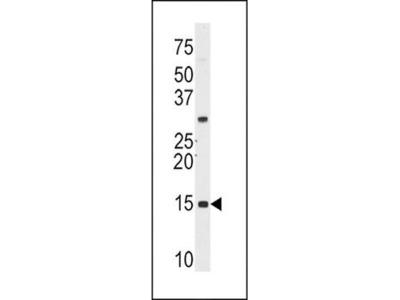 SNRPD1 antibody
