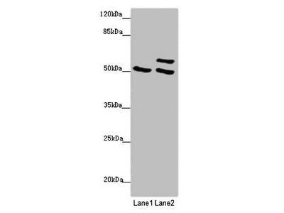 TUBB4A antibody