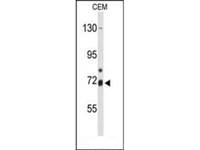 ALOX15B antibody