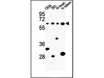 PLCZ1 antibody