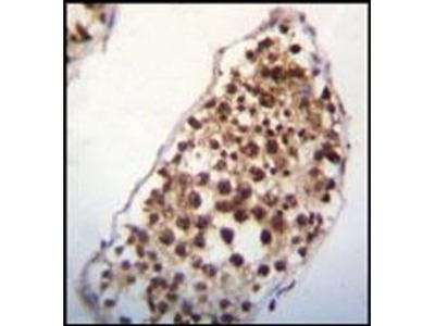 SNRK antibody