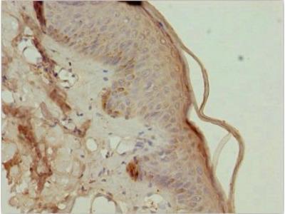 TRIM29 antibody