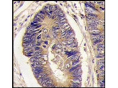 PTPH1 antibody