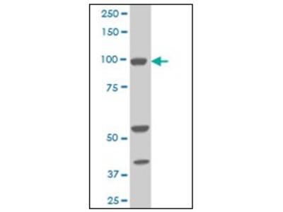anti ALDH1L1 / FTHFD