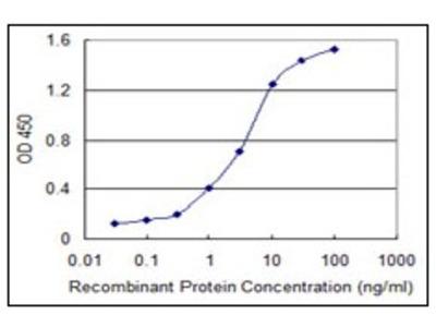 anti NRAMP2 / SLC11A2 (1-66)