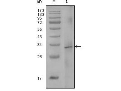 Factor VIII Monoclonal Antibody (5E9B2)