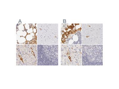 Anti-AHSG Antibody